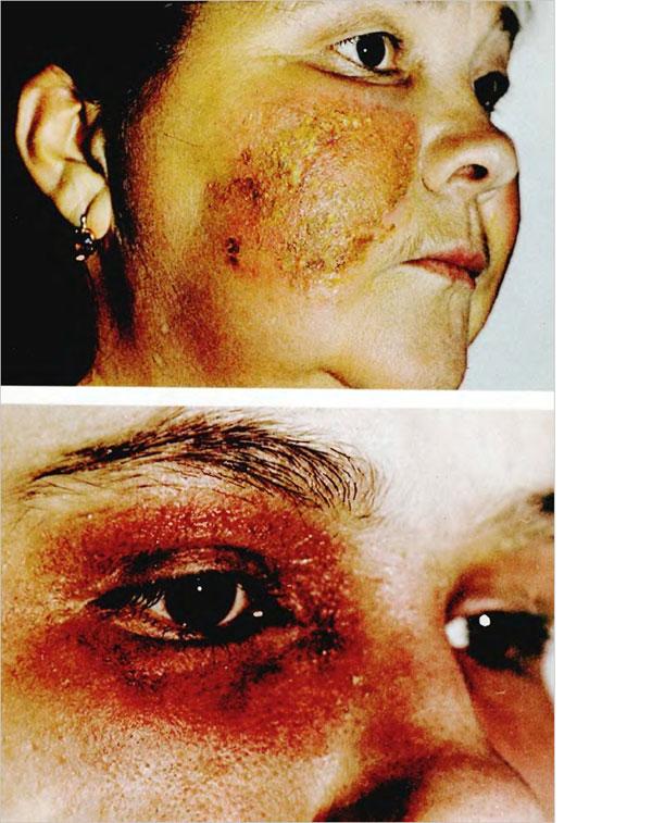 Лечение нейродермита кортикостероидами