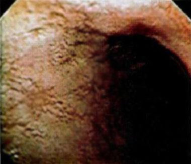 erozivniy-gastrit-foto