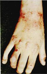 Атопический дерматит экзема фото