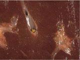 Камень в сегментарном протоке печени