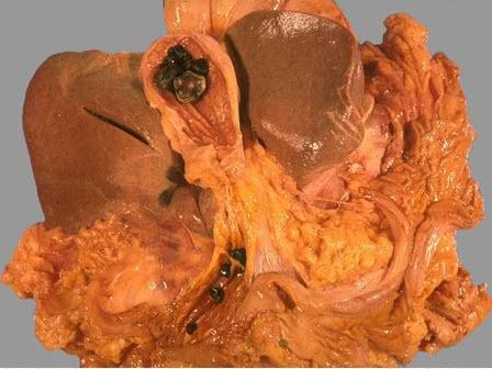 елена малышева очищение организма от паразитов